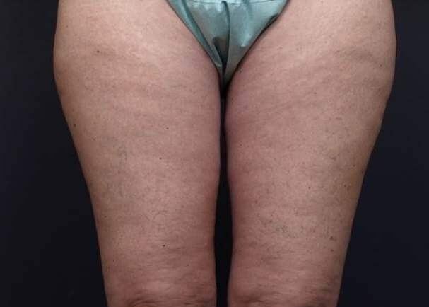 Thighplasty After