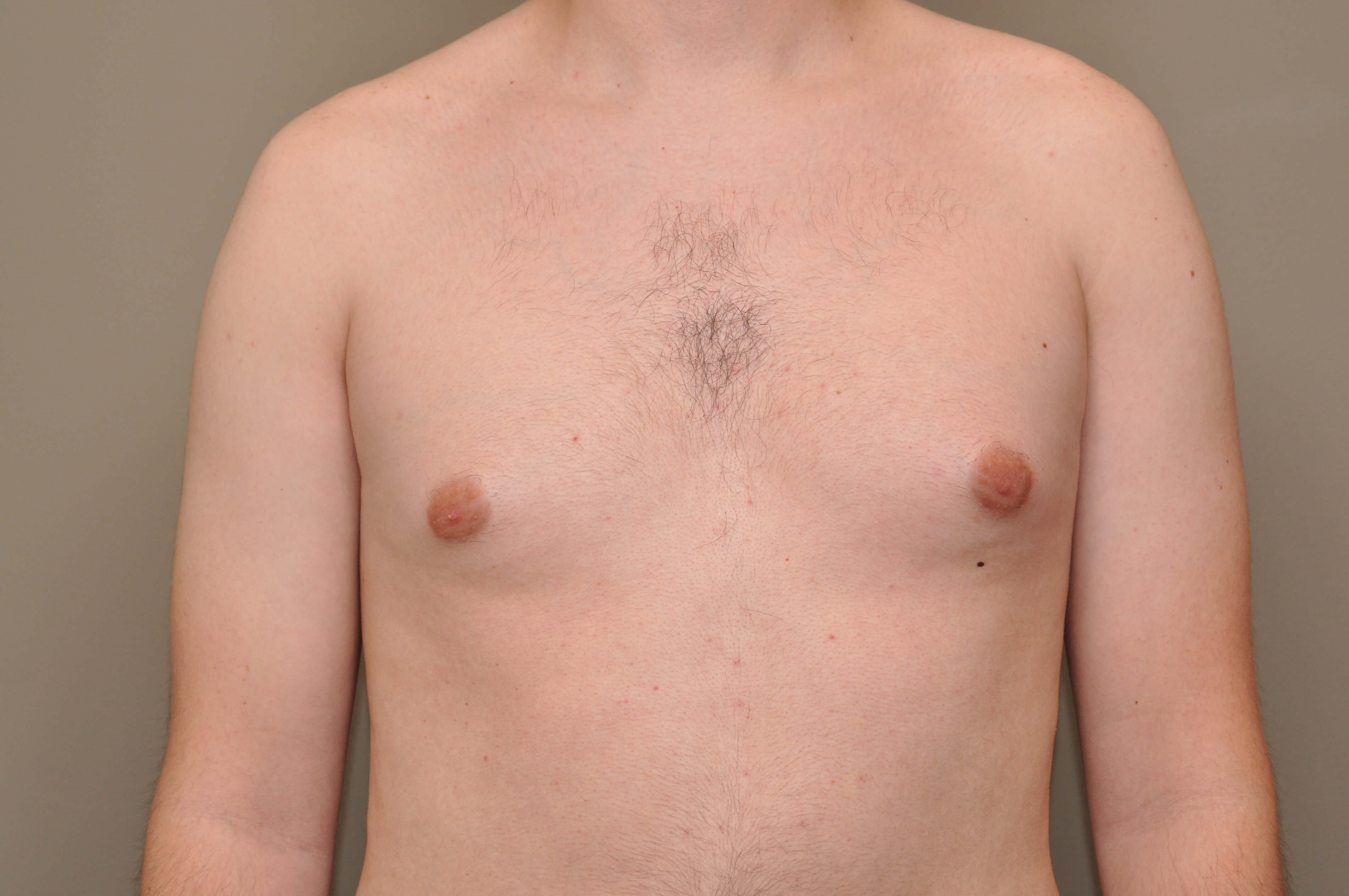 Gynecomastia front view Before
