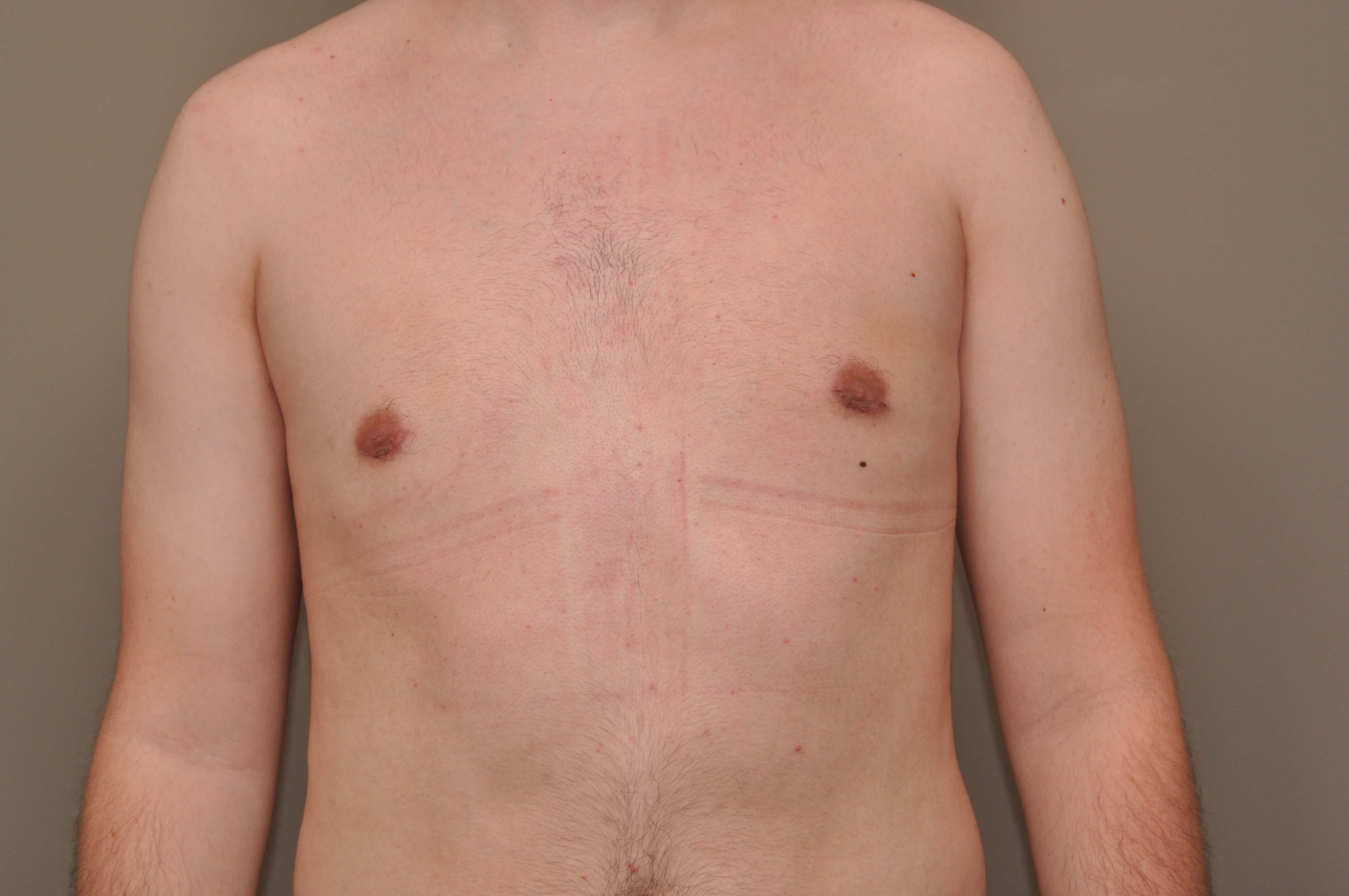 Gynecomastia front view After