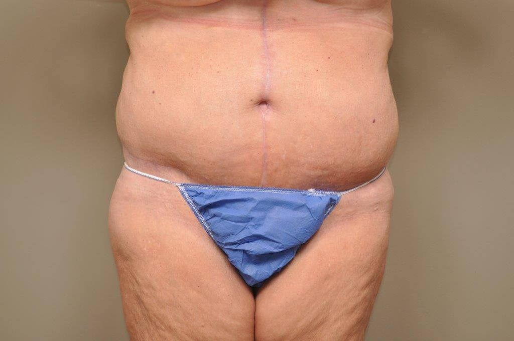 Massive Weight Loss front view After