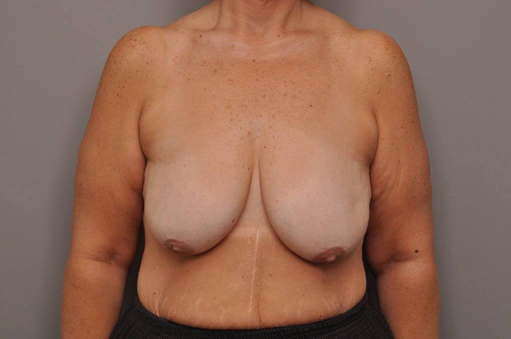 Post Bariatric Mastopexy Before