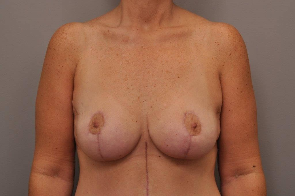 Post Bariatric Mastopexy After