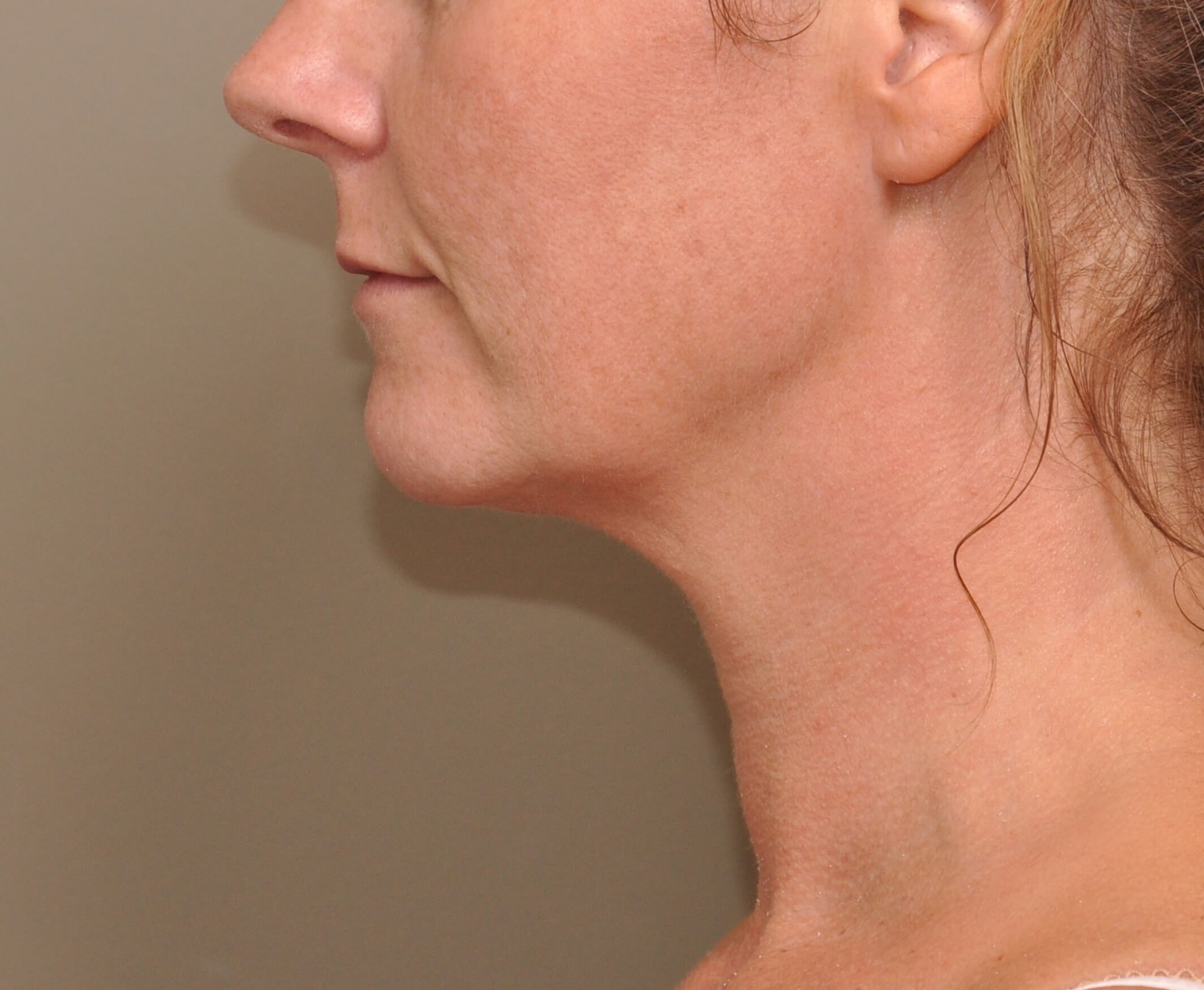 Kybella side view After