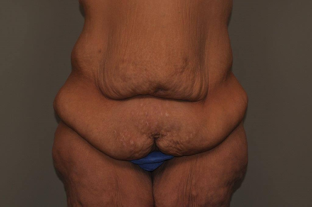 Post Bariatric Bodylift front Before