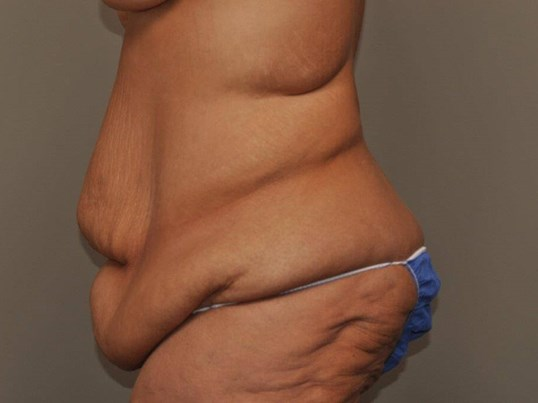 Post Bariatric Bodylift side Before
