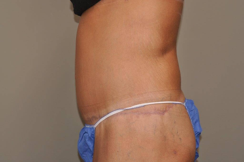 Post Bariatric Bodylift side After