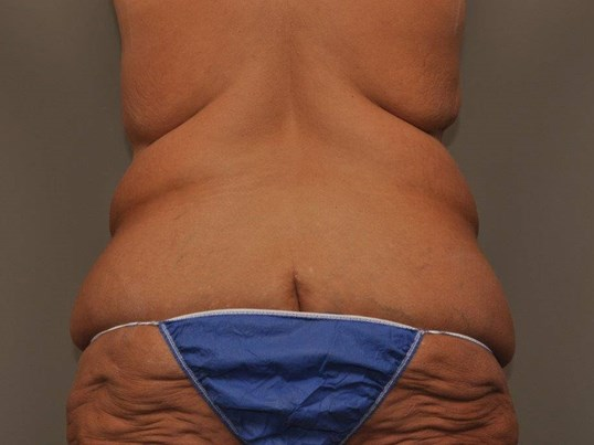 Post Bariatric Bodylift back Before