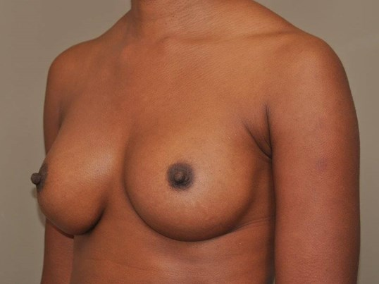 Breast Augmentation Angle View After