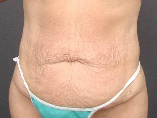 Abdominoplasty Front View Before