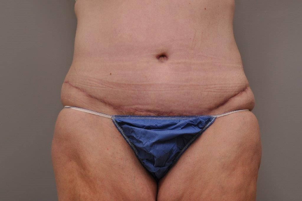 Post Bariatric Tummy Tuck After