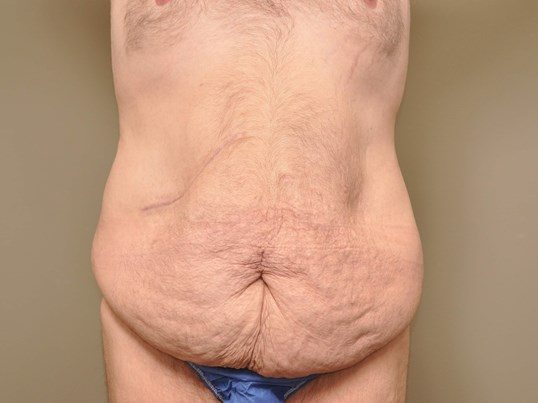 Post Bariatric Tummy Tuck Before