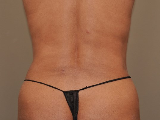 Liposuction of Flanks After