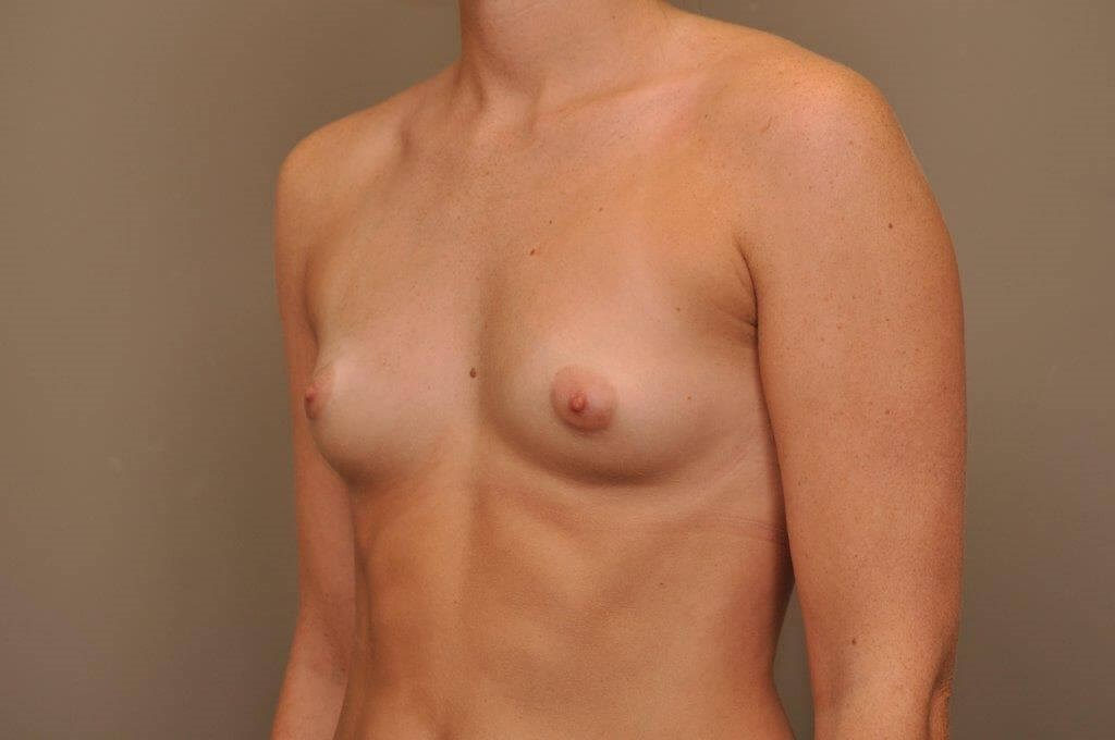 Breast Augmentation Angle View Before