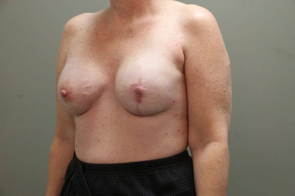 Breast Reconstruction Angled After