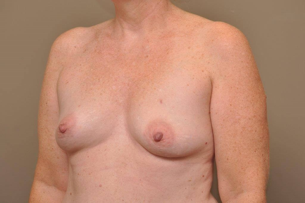 Breast Reconstruction Angled Before
