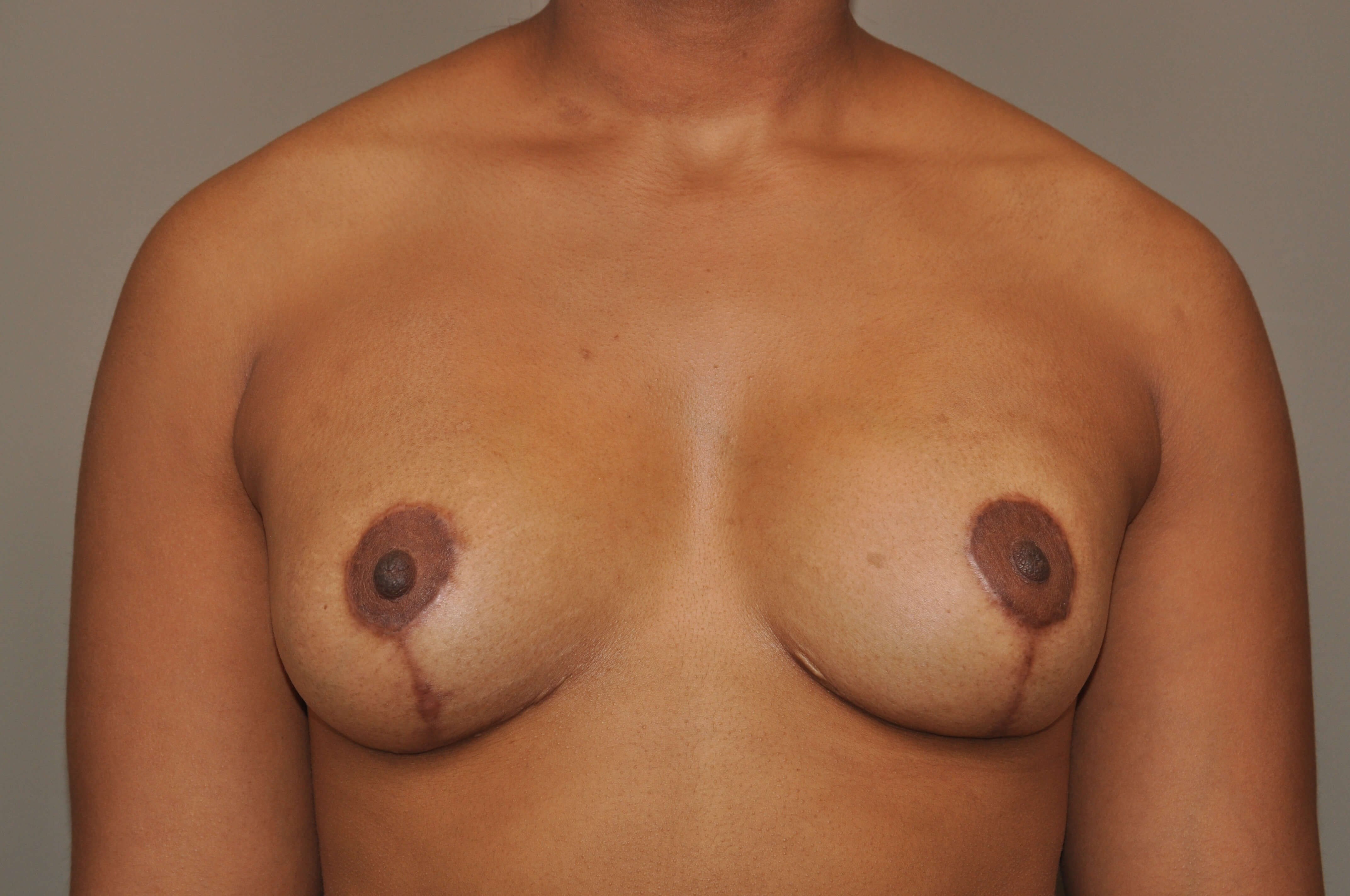 Mastopexy/Augmentation Front After