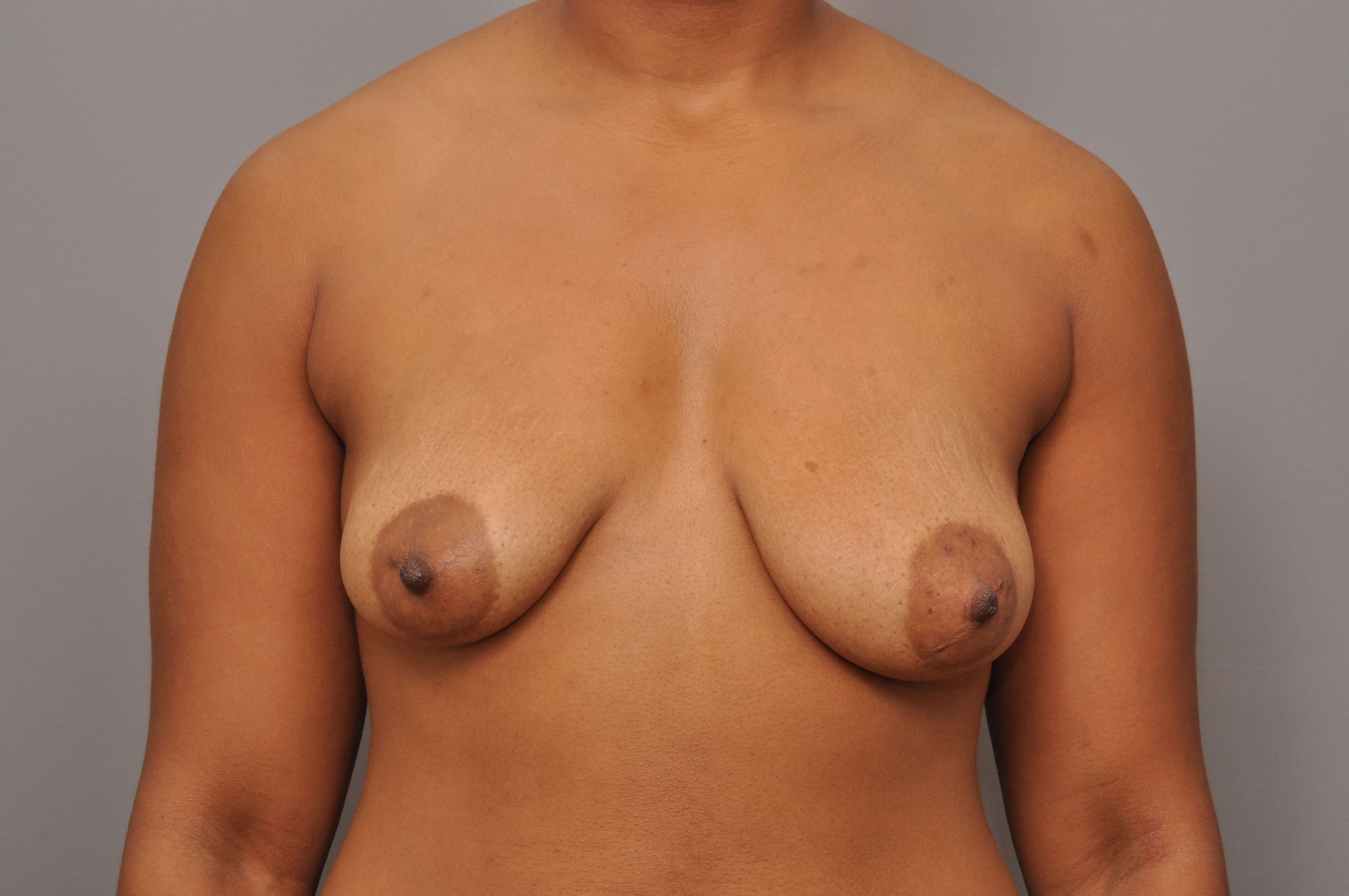 Mastopexy/Augmentation Front Before