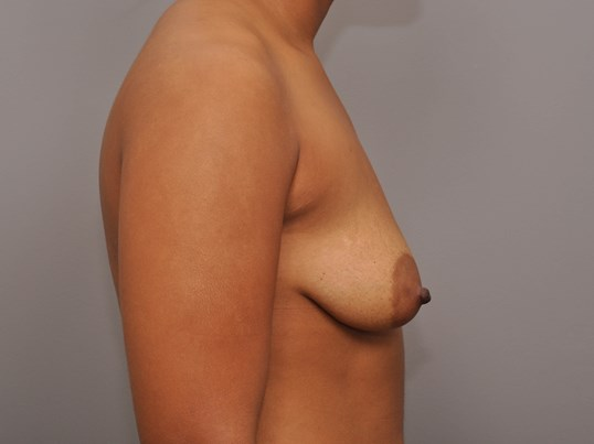 Mastopexy/Augmentation Side Before