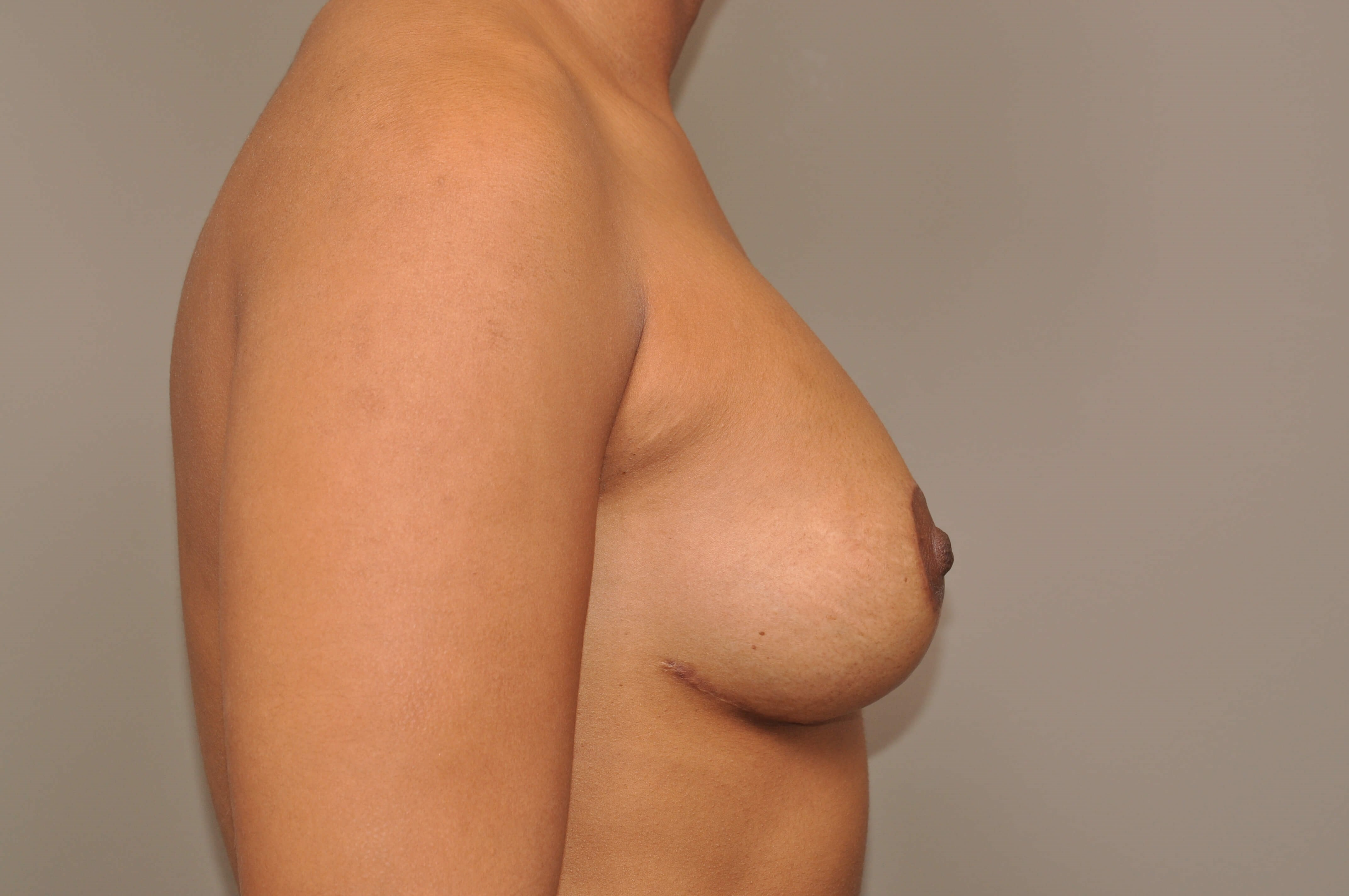 Mastopexy/Augmentation Side After