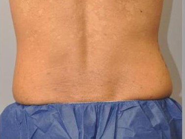 CoolSculpting Back View Before