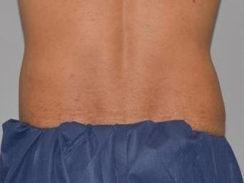 CoolSculpting Back View After
