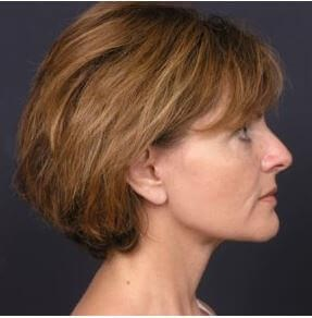 Facelift Surgery After