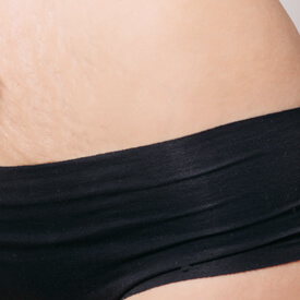 Laser Stretch Mark Reduction Image